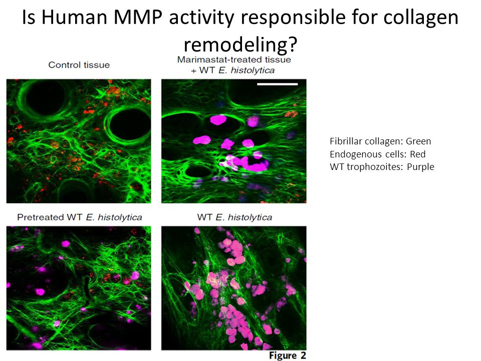 Is Human MMP activity responsible for collagen remodeling.