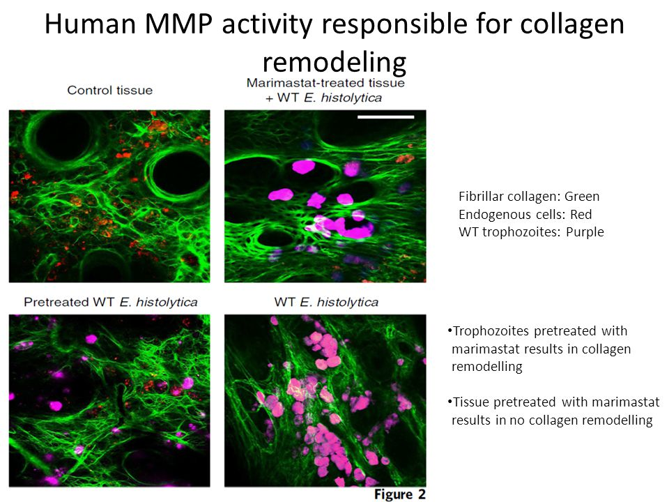 Human MMP activity responsible for collagen remodeling Fibrillar collagen: Green Endogenous cells: Red WT trophozoites: Purple Trophozoites pretreated with marimastat results in collagen remodelling Tissue pretreated with marimastat results in no collagen remodelling