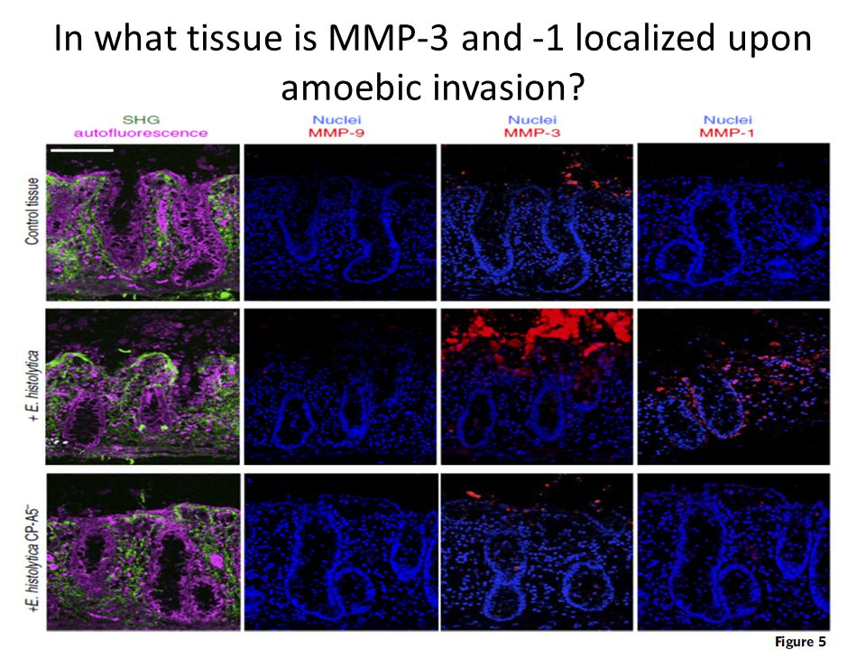 In what tissue is MMP-3 and -1 localized upon amoebic invasion?