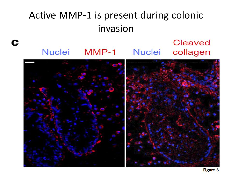 Active MMP-1 is present during colonic invasion