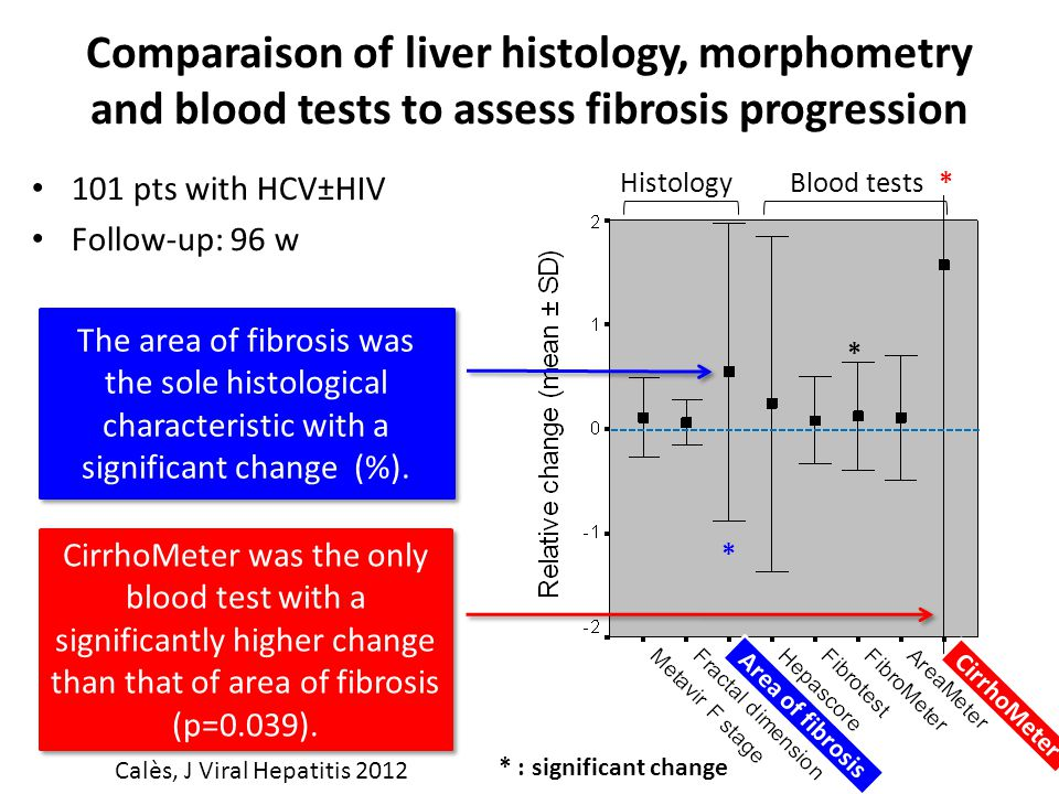 Comparaison of liver histology, morphometry and blood tests to assess fibrosis progression 101 pts with HCV±HIV Follow-up: 96 w HistologyBlood tests*
