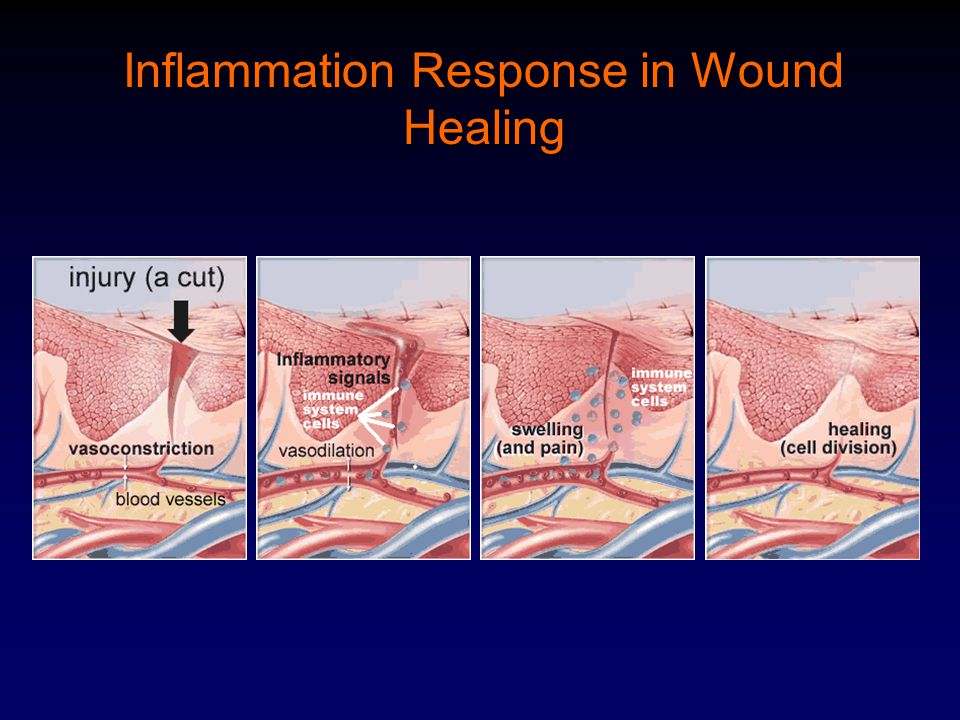 Inflammation Response in Wound Healing