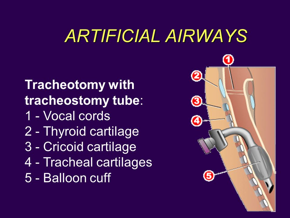 ARTIFICIAL AIRWAYS INTUBATION Tracheotomy with tracheostomy tube: 1 - Vocal cords 2 - Thyroid cartilage 3 - Cricoid cartilage 4 - Tracheal cartilages