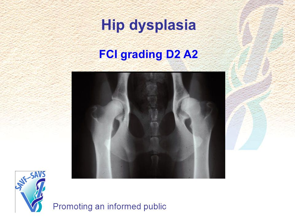 Promoting an informed public Hip dysplasia FCI grading D2 A2