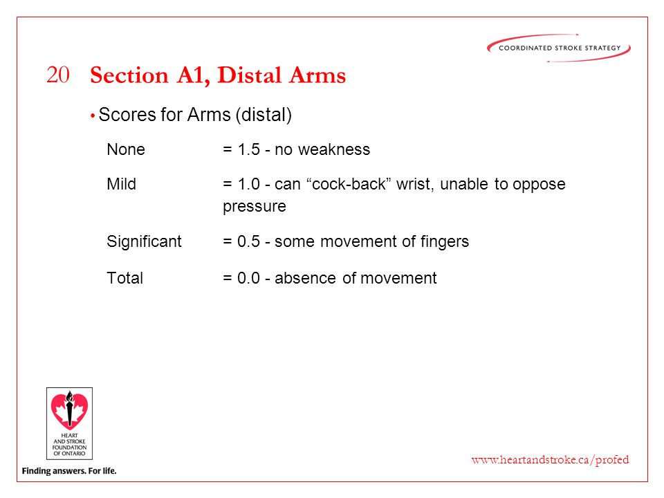 "20 www.heartandstroke.ca/profed Section A1, Distal Arms Scores for Arms (distal) None= 1.5 - no weakness Mild= 1.0 - can ""cock-back"" wrist, unable to"