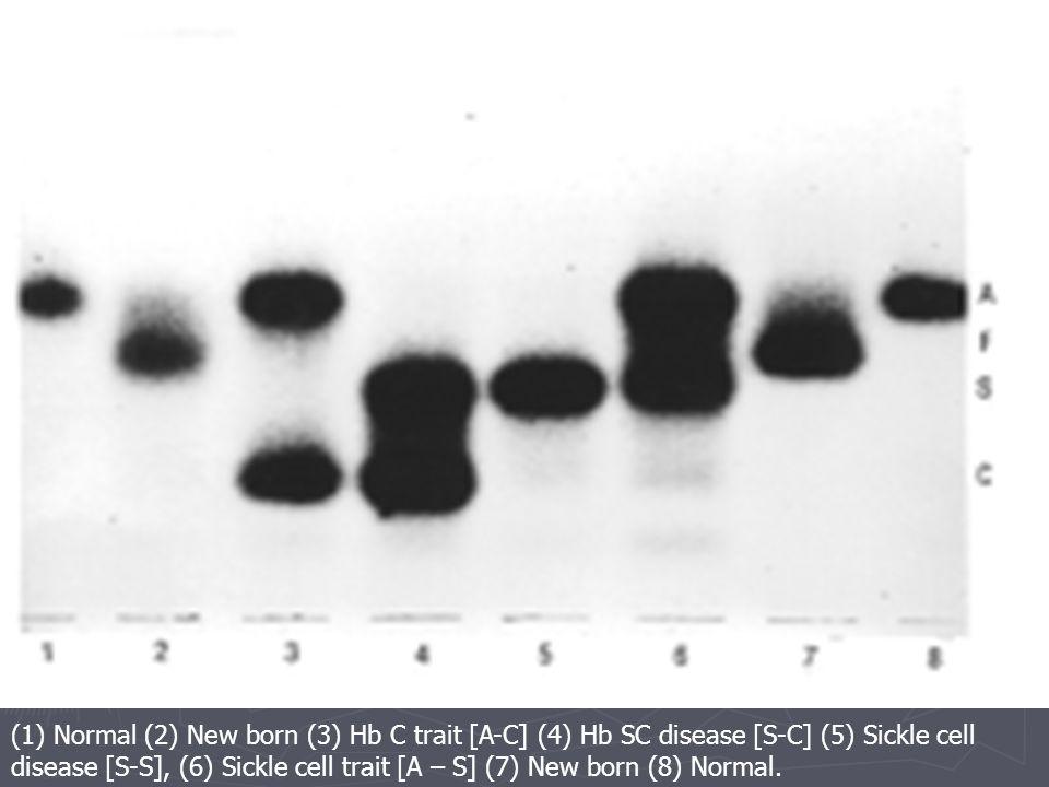(1) Normal (2) New born (3) Hb C trait [A-C] (4) Hb SC disease [S-C] (5) Sickle cell disease [S-S], (6) Sickle cell trait [A – S] (7) New born (8) Normal.