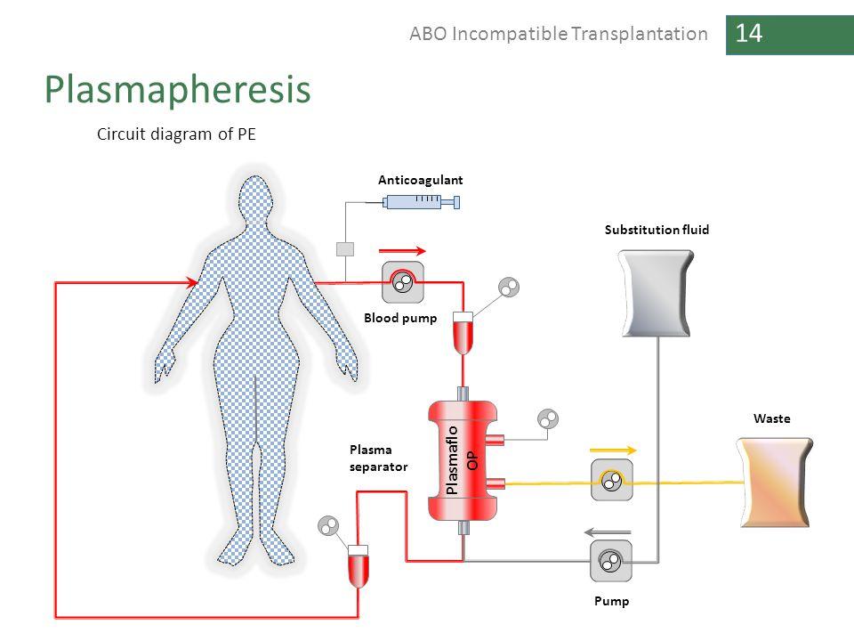 14 ABO Incompatible Transplantation Plasmapheresis
