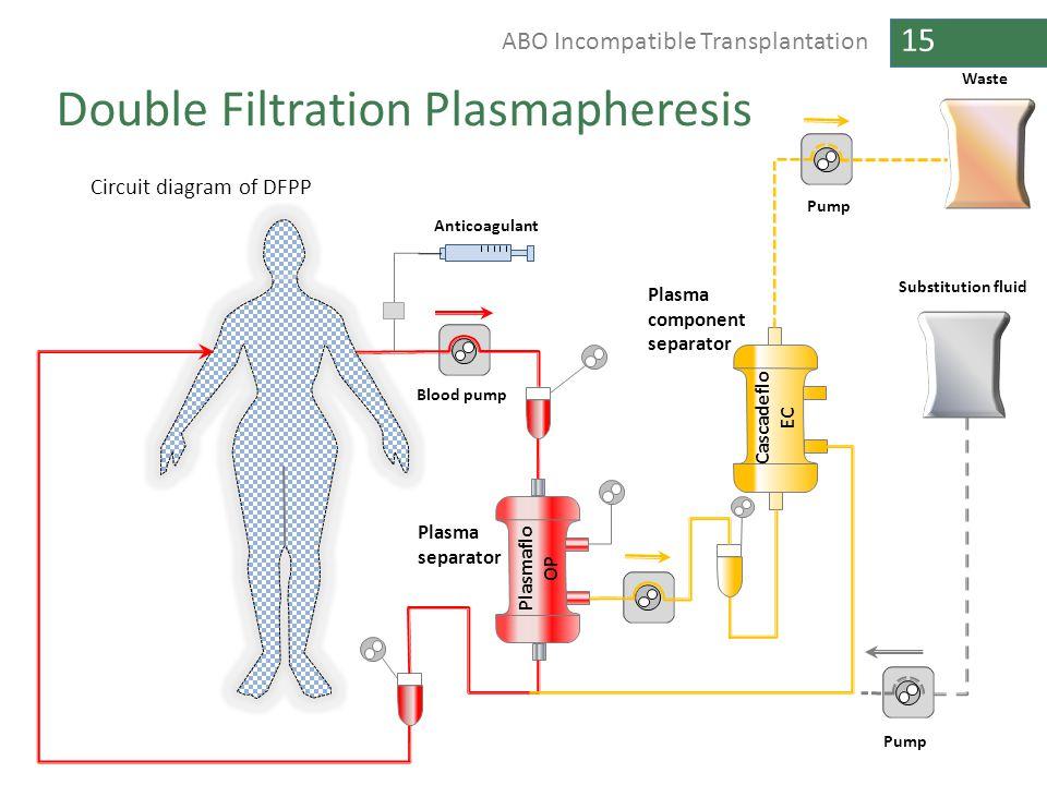 15 ABO Incompatible Transplantation Double Filtration Plasmapheresis