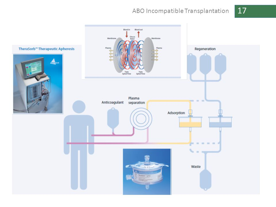 17 ABO Incompatible Transplantation
