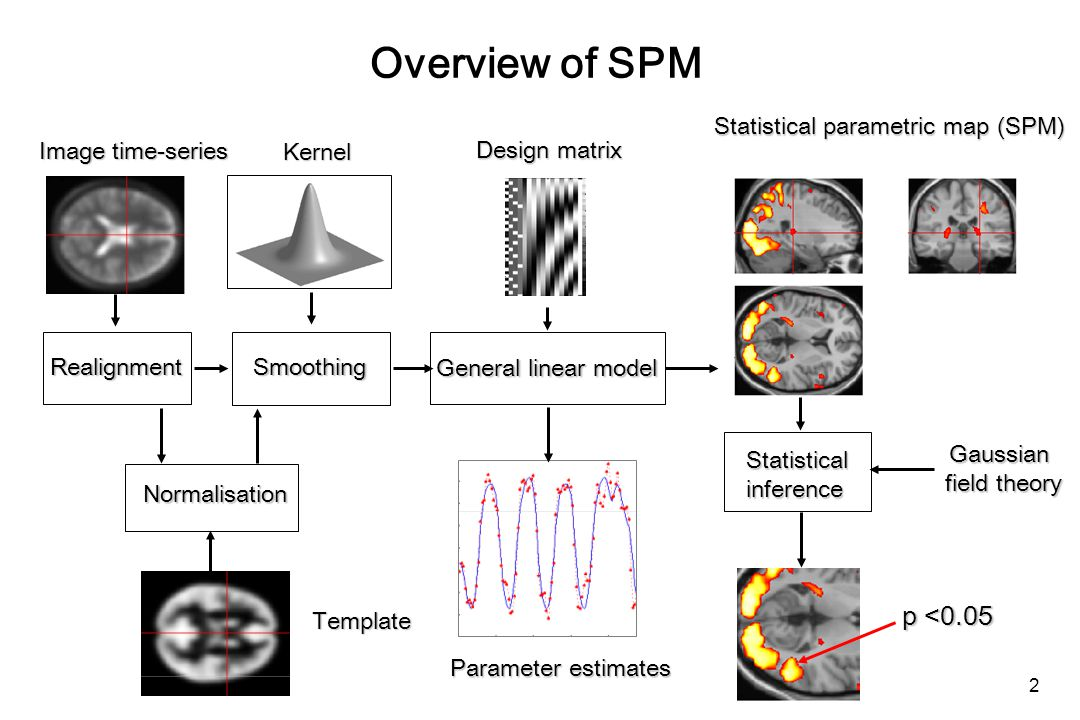 Overview of SPM RealignmentSmoothing Normalisation General linear model Statistical parametric map (SPM) Image time-series Parameter estimates Design matrix Template Kernel Gaussian field theory p <0.05 Statisticalinference 2