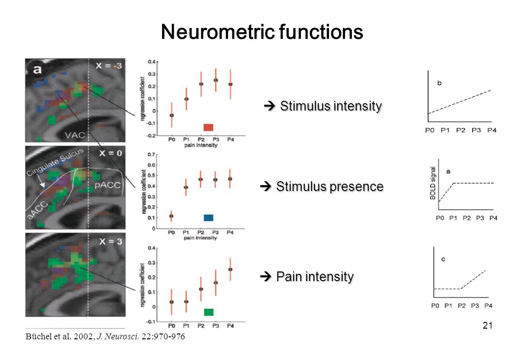 Neurometric functions  Stimulus presence  Pain intensity  Stimulus intensity Büchel et al.