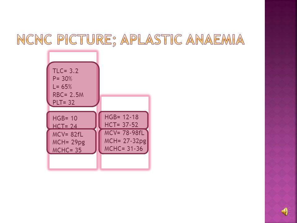 Macrocytic Anaemia