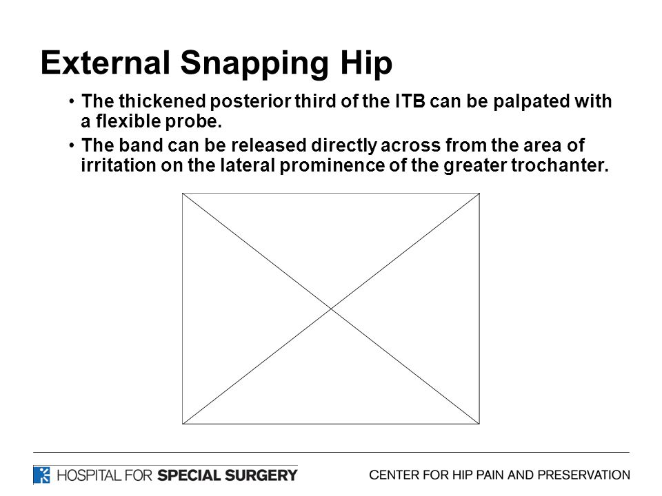 External Snapping Hip The thickened posterior third of the ITB can be palpated with a flexible probe. The band can be released directly across from th