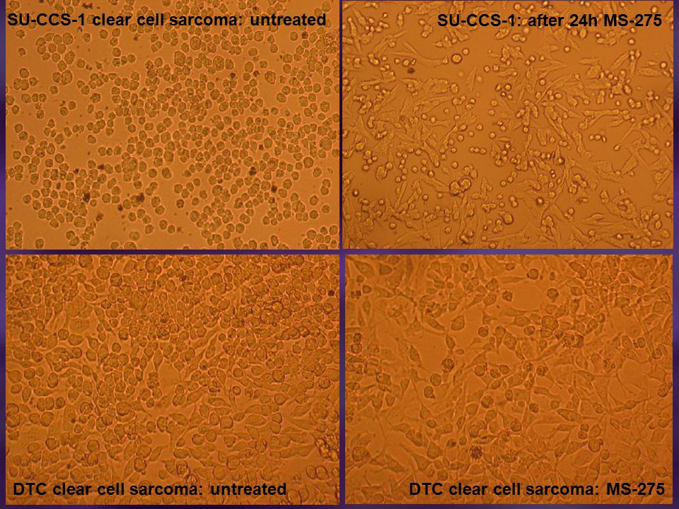 SU-CCS-1 clear cell sarcoma: untreated SU-CCS-1: after 24h MS-275 DTC clear cell sarcoma: untreatedDTC clear cell sarcoma: MS-275