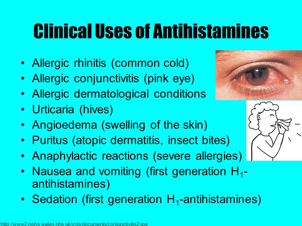Clinical Uses of Antihistamines Allergic rhinitis (common cold) Allergic conjunctivitis (pink eye) Allergic dermatological conditions Urticaria (hives) Angioedema (swelling of the skin) Puritus (atopic dermatitis, insect bites) Anaphylactic reactions (severe allergies) Nausea and vomiting (first generation H 1 - antihistamines) Sedation (first generation H 1 -antihistamines) http://www2.nphs.wales.nhs.uk/icds/documents/conjunctivitis2.jpg