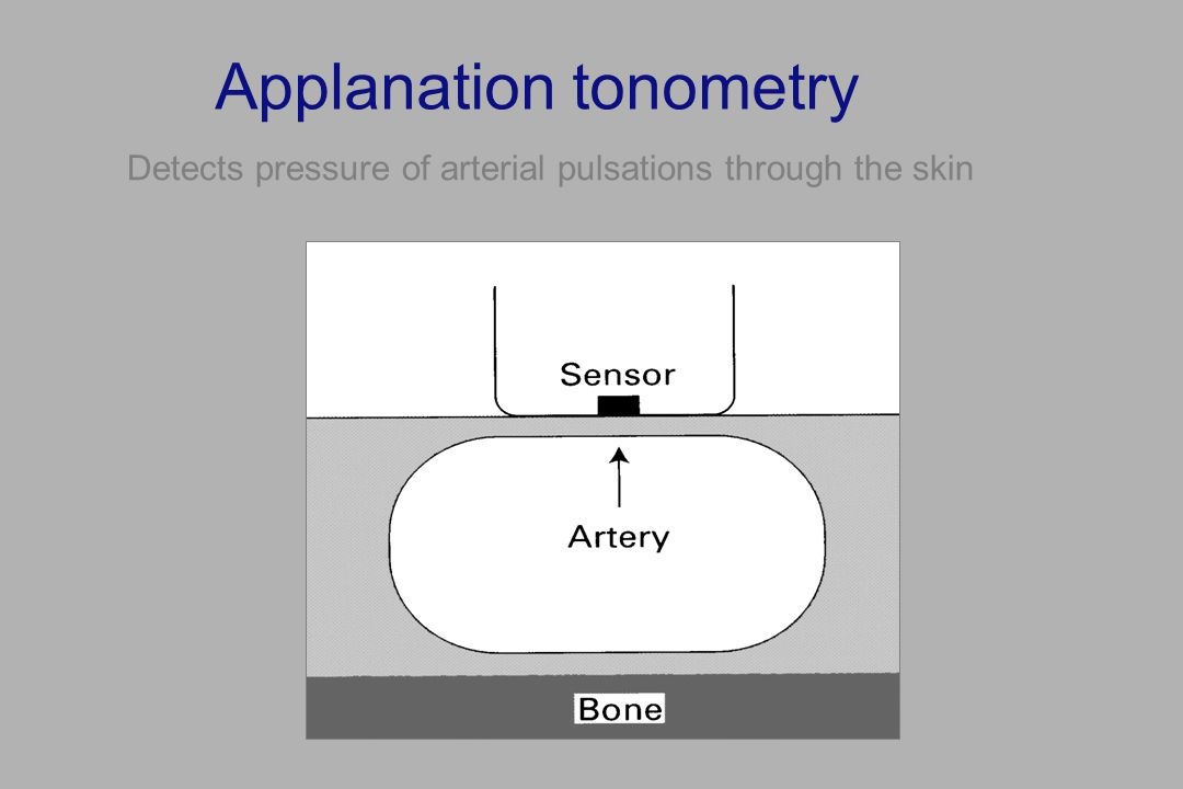 Applanation tonometry Detects pressure of arterial pulsations through the skin