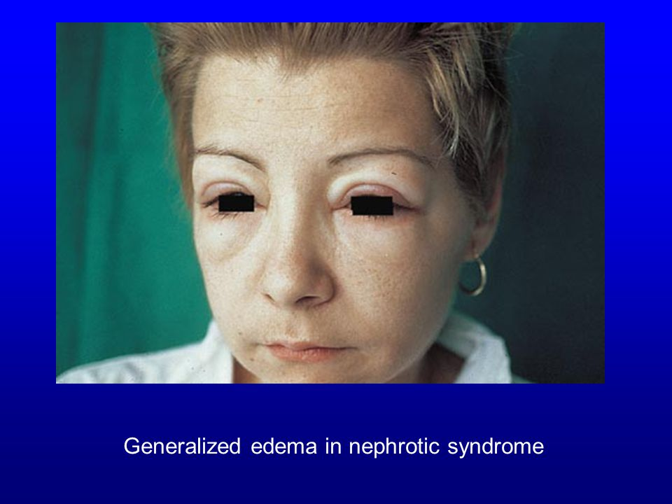 Generalized edema in nephrotic syndrome