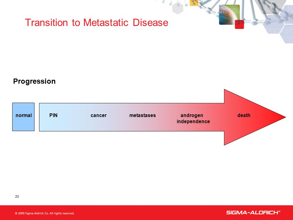 normalPIN cancer metastases androgen death independence Progression Transition to Metastatic Disease 20