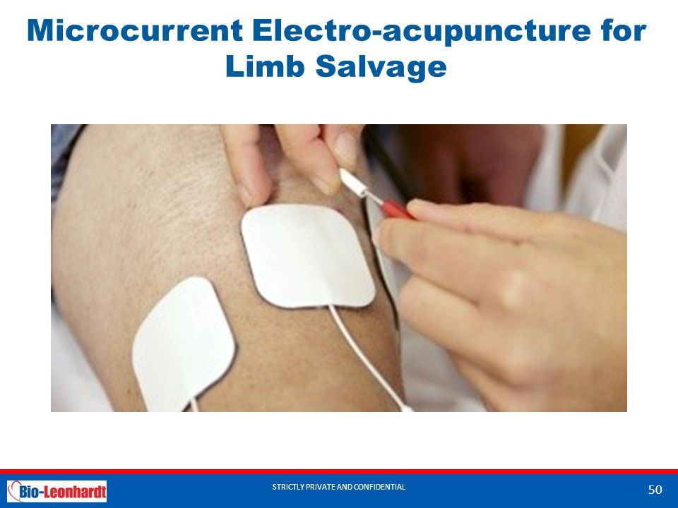 STRICTLY PRIVATE AND CONFIDENTIAL Microcurrent Electro-acupuncture for Limb Salvage STRICTLY PRIVATE AND CONFIDENTIAL 50