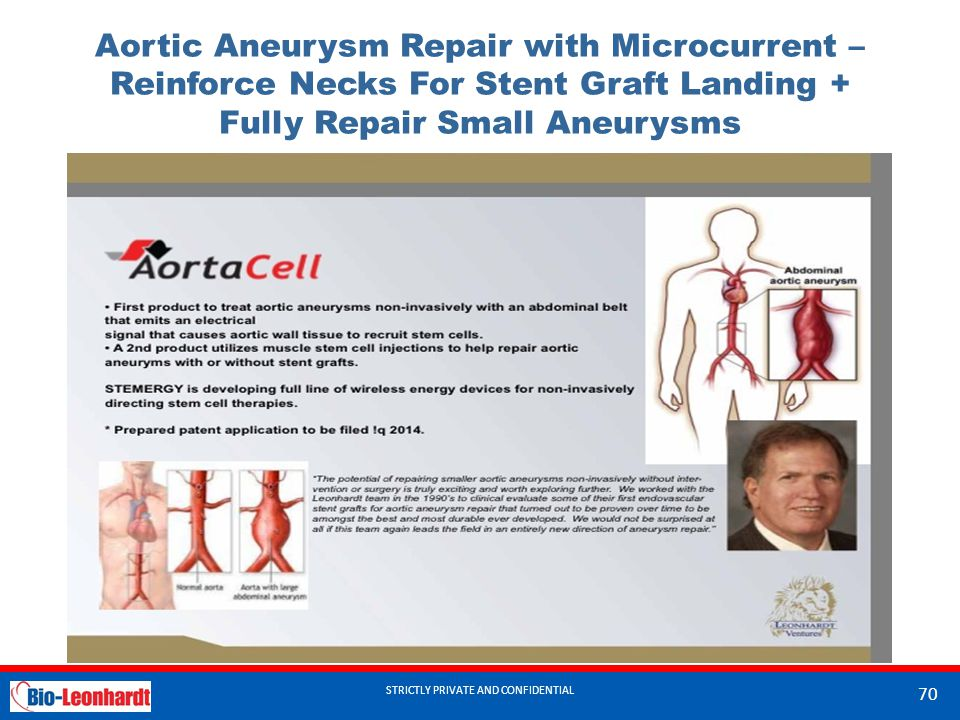 STRICTLY PRIVATE AND CONFIDENTIAL Aortic Aneurysm Repair with Microcurrent – Reinforce Necks For Stent Graft Landing + Fully Repair Small Aneurysms ST