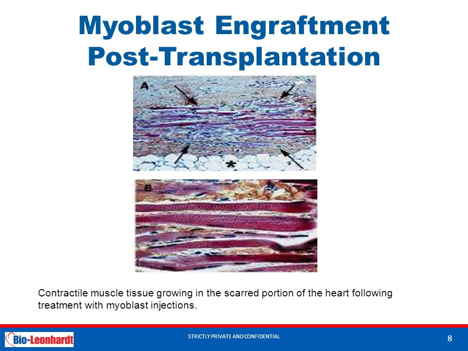 STRICTLY PRIVATE AND CONFIDENTIAL Myoblast Engraftment Post-Transplantation STRICTLY PRIVATE AND CONFIDENTIAL 8 Contractile muscle tissue growing in t