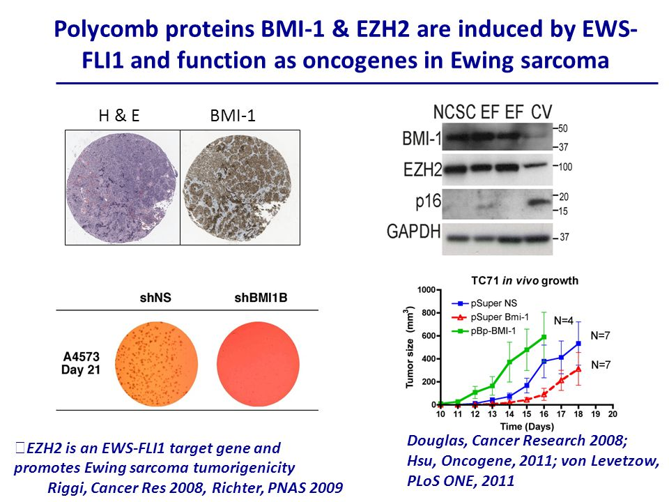 Polycomb proteins BMI-1 & EZH2 are induced by EWS- FLI1 and function as oncogenes in Ewing sarcoma Douglas, Cancer Research 2008; Hsu, Oncogene, 2011; von Levetzow, PLoS ONE, 2011 H & EBMI-1 ★ EZH2 is an EWS-FLI1 target gene and promotes Ewing sarcoma tumorigenicity Riggi, Cancer Res 2008, Richter, PNAS 2009