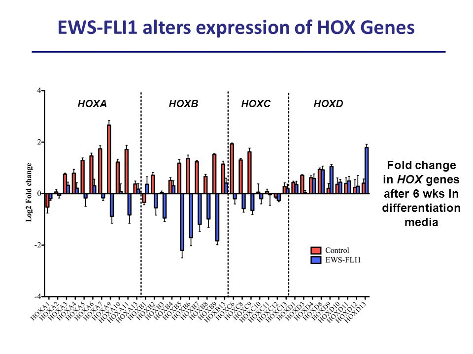 HOXD9 HOXD10HOXD11HOXD13 Ewing sarcomas have altered HOX profiles Normal Adult Tissue (N=33) BM-MSC (N=3) NC-MSC (N=3) NCSC (N=3) Ewing Sarcoma (N=32) PCA Mapping: 37 HOX Genes A Abnormal upregulation of posterior HOXD genes FDR<0.05 Stem cells Adult tissues ES tumors B 24/37 HOX genes are significantly differentially expressed in Ewing sarcoma FDR<0.05