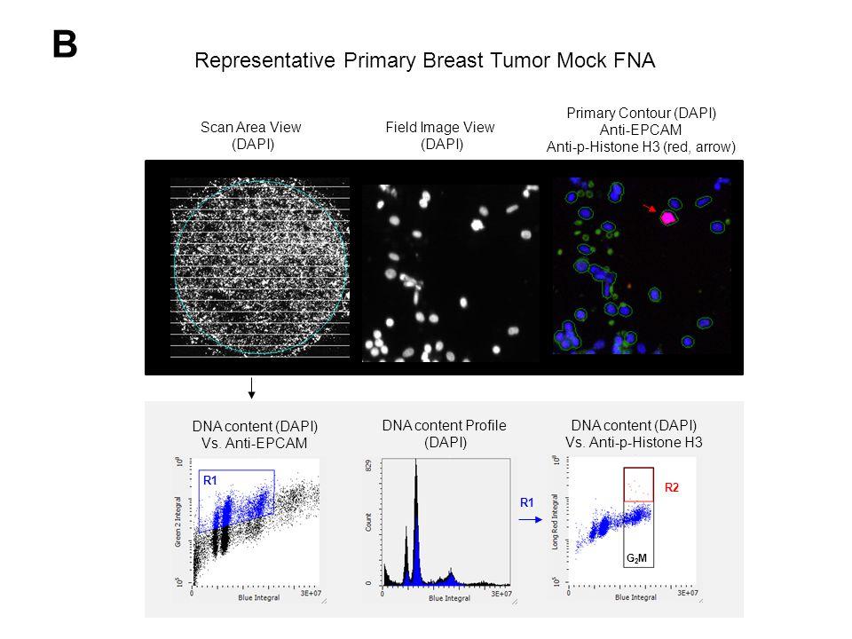 B Scan Area View (DAPI) Field Image View (DAPI) Primary Contour (DAPI) Anti-EPCAM Anti-p-Histone H3 (red, arrow) DNA content (DAPI) Vs.