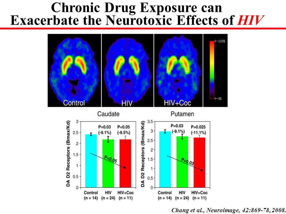 Chang et al., Neuroimage, 42:869-78, 2008. Chronic Drug Exposure can Exacerbate the Neurotoxic Effects of HIV