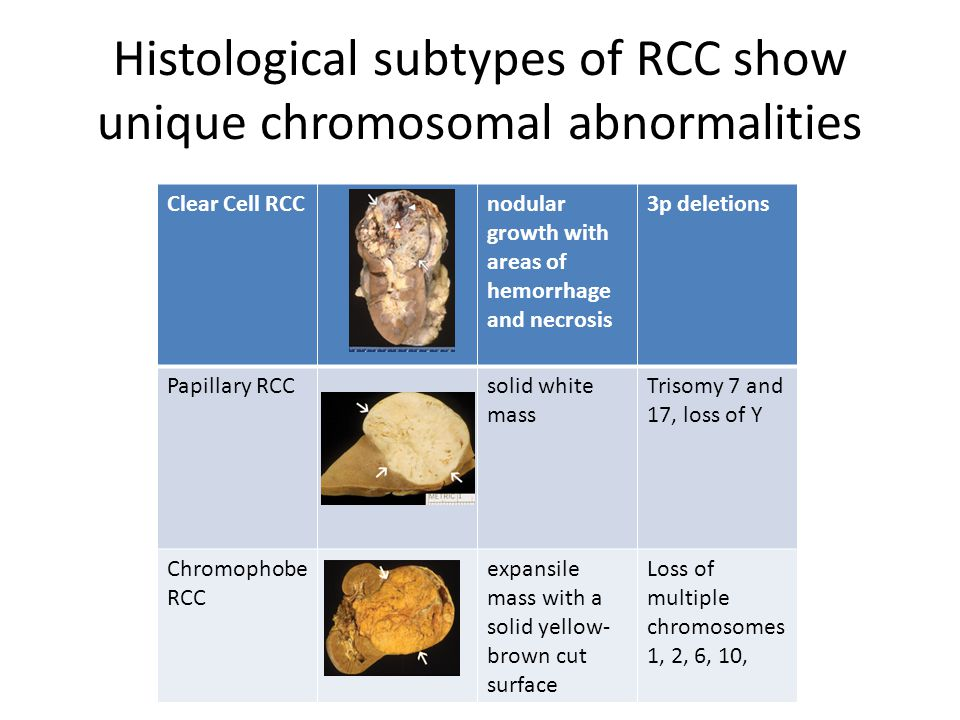 Histological subtypes of RCC show unique chromosomal abnormalities Clear Cell RCCnodular growth with areas of hemorrhage and necrosis 3p deletions Pap