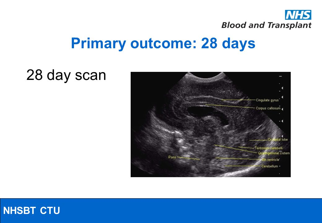 NHSBT/MRC Clinical Studies Unit Primary outcome: 28 days 28 day scan NHSBT CTU