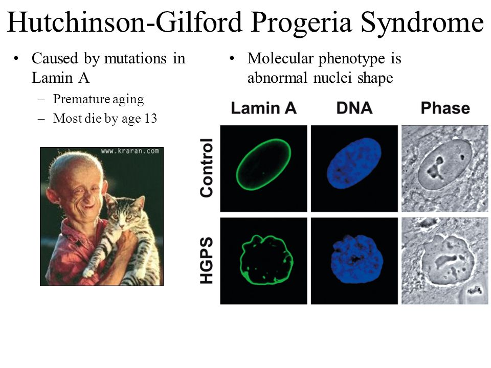 Hutchinson-Gilford Progeria Syndrome Caused by mutations in Lamin A –Premature aging –Most die by age 13 Molecular phenotype is abnormal nuclei shape