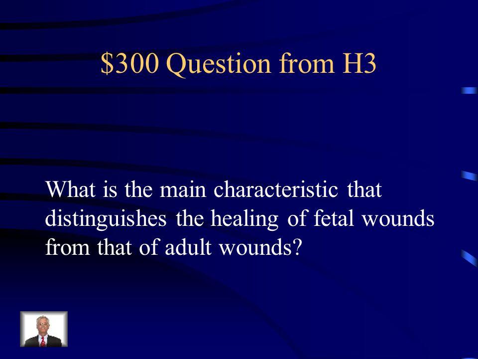 $200 Answer from H3 Schwann cells