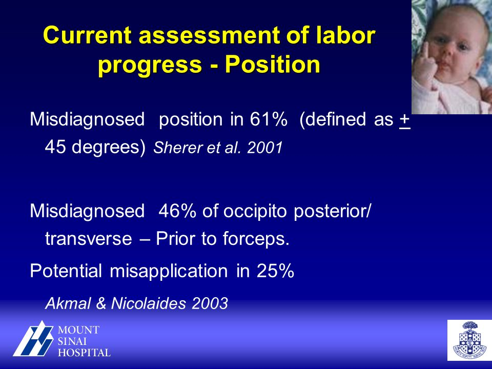 Current assessment of labor progress - Position Misdiagnosed position in 61% (defined as + 45 degrees) Sherer et al.