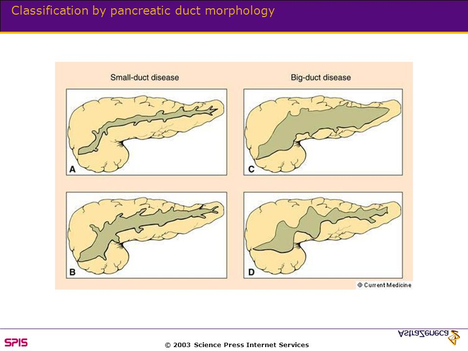 © 2003 Science Press Internet Services Classification by pancreatic duct morphology