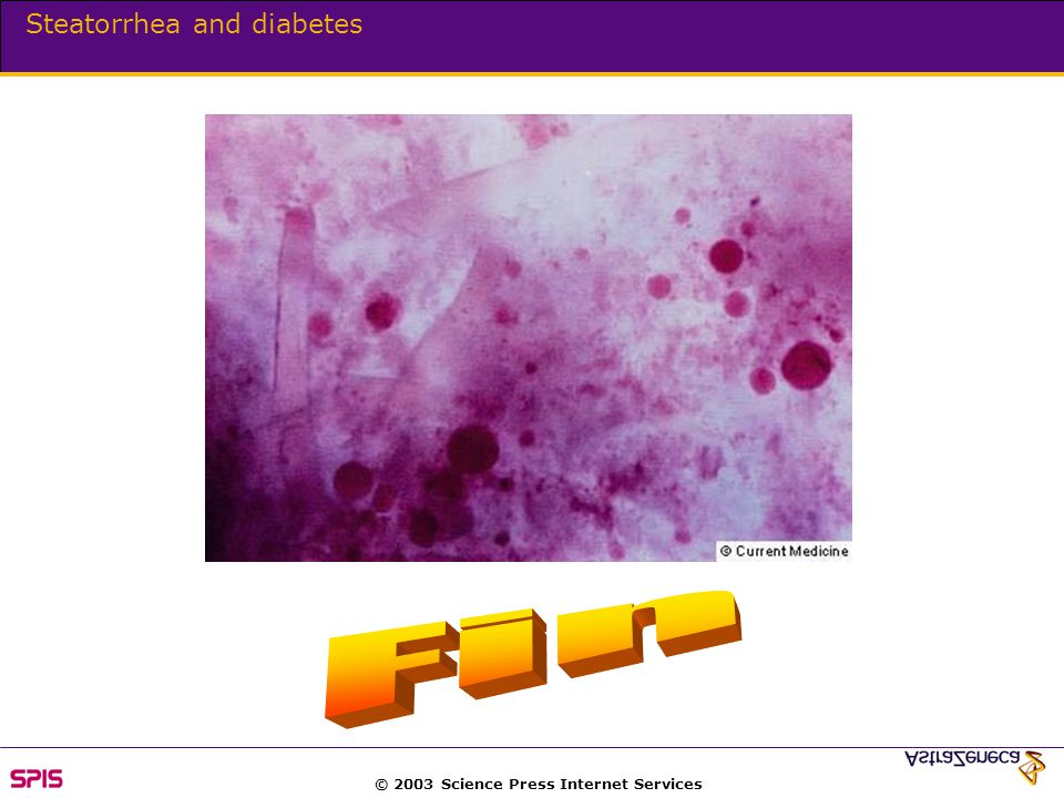 © 2003 Science Press Internet Services Steatorrhea and diabetes