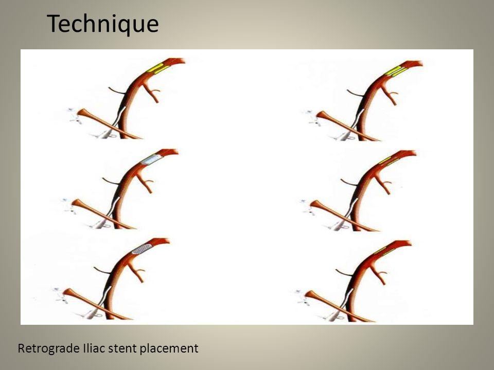 Technique s Retrograde Iliac stent placement