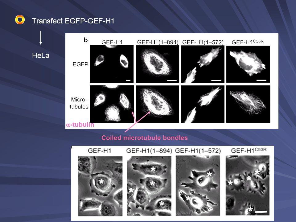 Transfect EGFP-GEF-H1 HeLa  -tubulin Coiled microtubule bondles