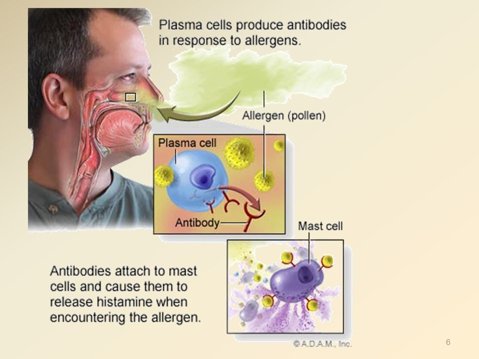 Treatment of Rhinitis,,,, Cont' 2- Alpha Adrenergic agonists (Decongestants: po/ topical) A- Short acting  -adrenergic agonist ( nasal decongestants e.g., pseudoephedrine) → c onstrict dilated arterioles in nasal mucosa, suppress swelling & ↓airway resistance B- Longer acting: oxymetazoline C- Alpha agonists + antihistamine (loratadine or fexofenadine + pseudophedrine) Alpha agonists should not be used for longer time bec of rebound nasal congestion.