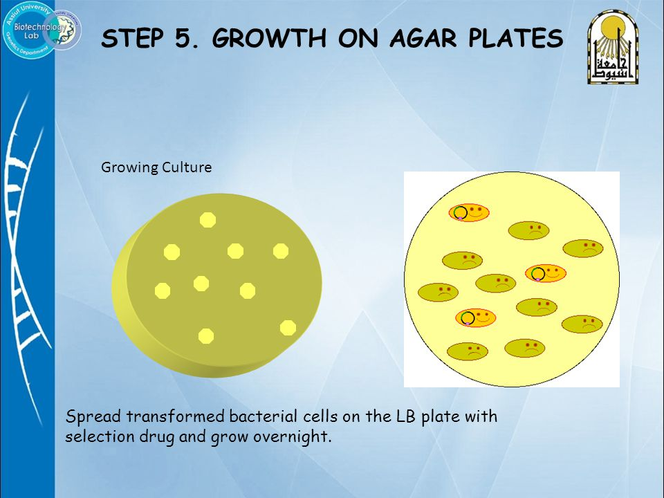 Spread transformed bacterial cells on the LB plate with selection drug and grow overnight.