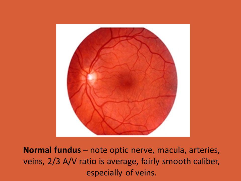 Capillaries of the retina Central Retinal Vein Superior Ophthalmic Vein Cavernous Sinus Inferior & Superior Petrosal Sinuses Sigmoid Sinus Internal Jugular Vein