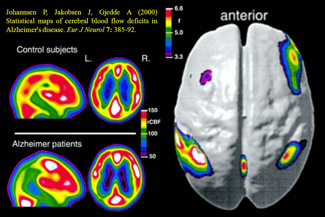 Johannsen P, Jakobsen J, Gjedde A (2000) Statistical maps of cerebral blood flow deficits in Alzheimer s disease.