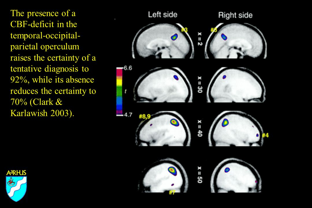 The presence of a CBF-deficit in the temporal-occipital- parietal operculum raises the certainty of a tentative diagnosis to 92%, while its absence reduces the certainty to 70% (Clark & Karlawish 2003).