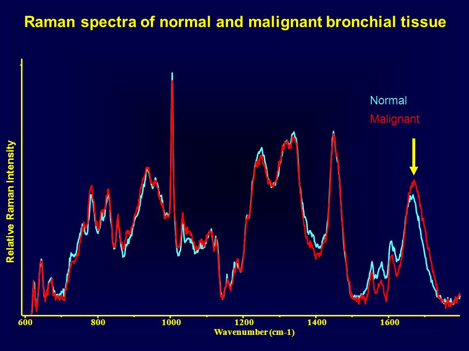 Raman spectra of normal and malignant bronchial tissue Normal 6008001000120014001600 Wavenumber (cm-1) Malignant Relative Raman Intensity