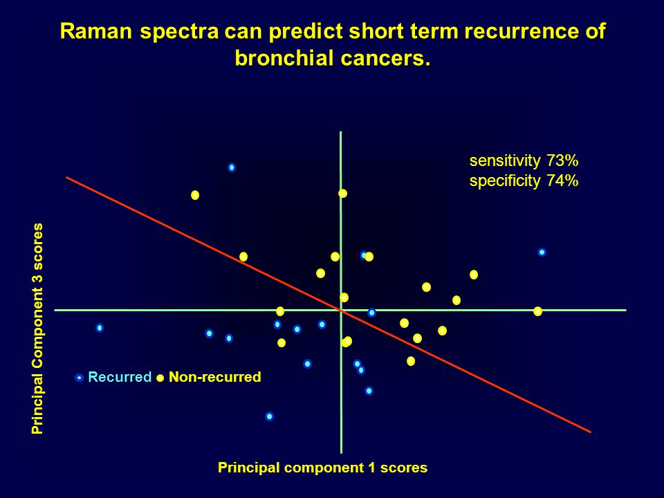 Raman spectra can predict short term recurrence of bronchial cancers. RecurredNon-recurred sensitivity 73% specificity 74% Principal component 1 score