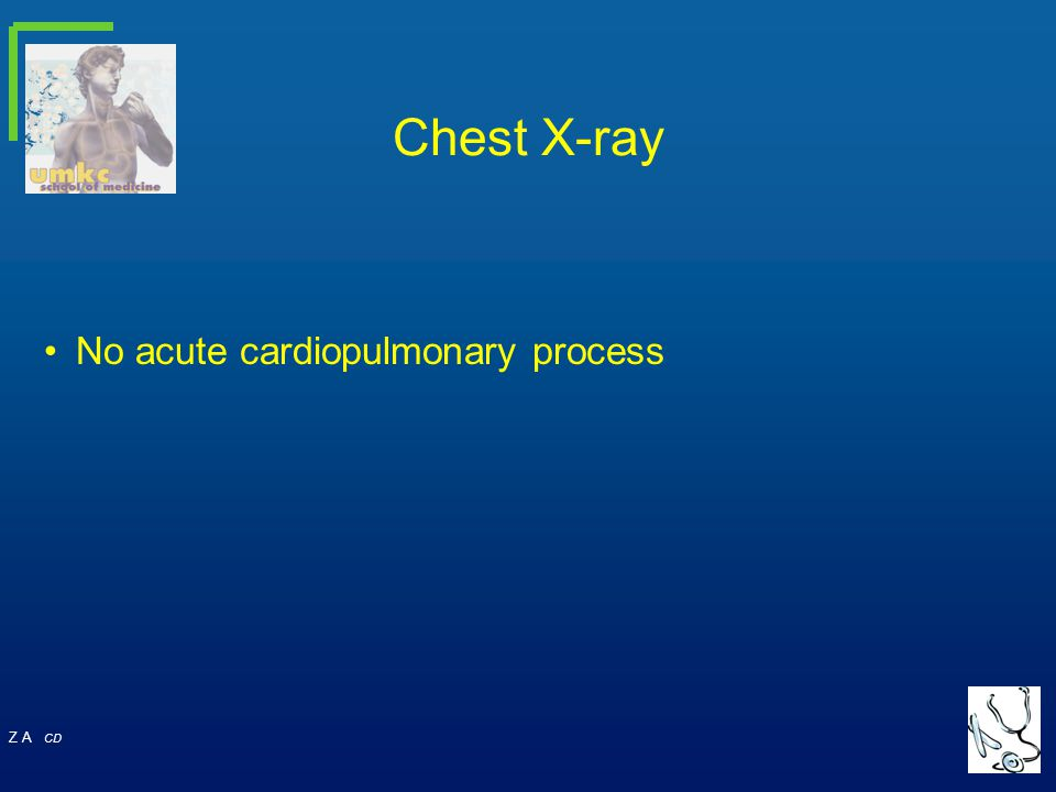 Z A CD No acute cardiopulmonary process Chest X-ray