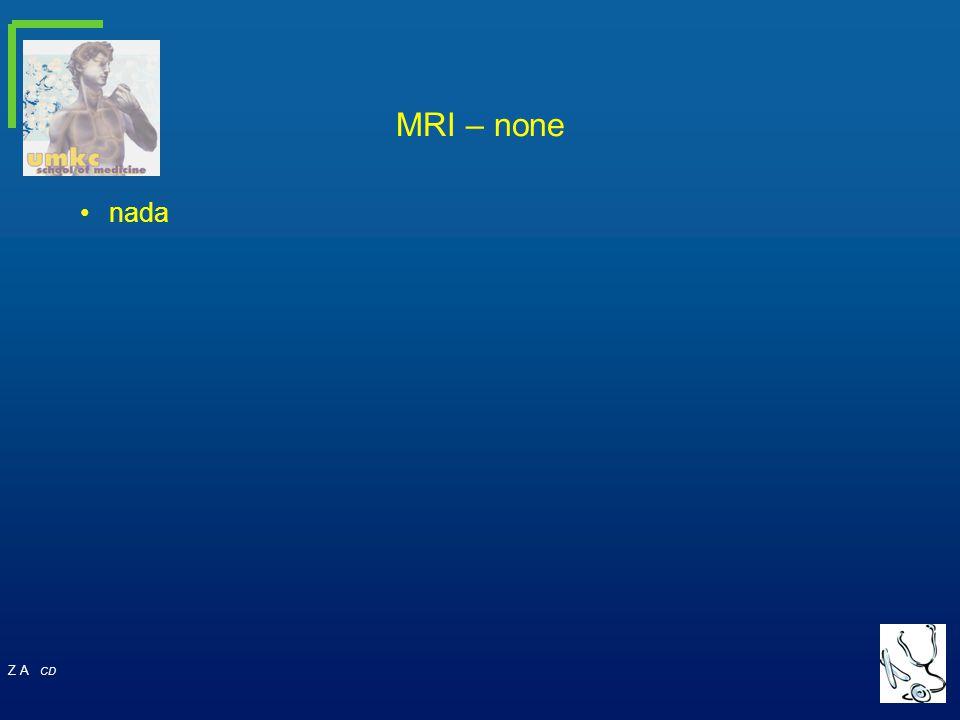 MRI – none nada