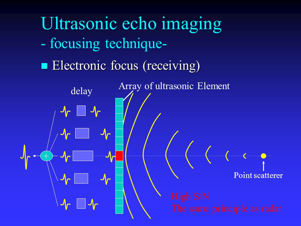 Ultrasonic echo imaging - focusing technique- Electronic focus (receiving) Electronic focus (receiving) Array of ultrasonic Element Point scatterer de