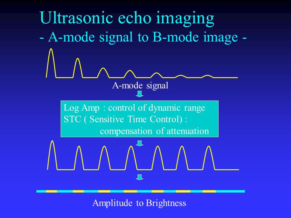 Ultrasonic echo imaging - A-mode signal to B-mode image - A-mode signal Log Amp : control of dynamic range STC ( Sensitive Time Control) : compensatio