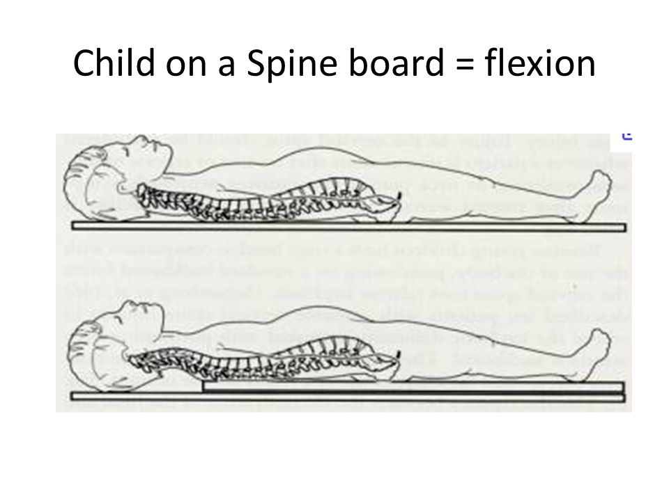 Child on a Spine board = flexion